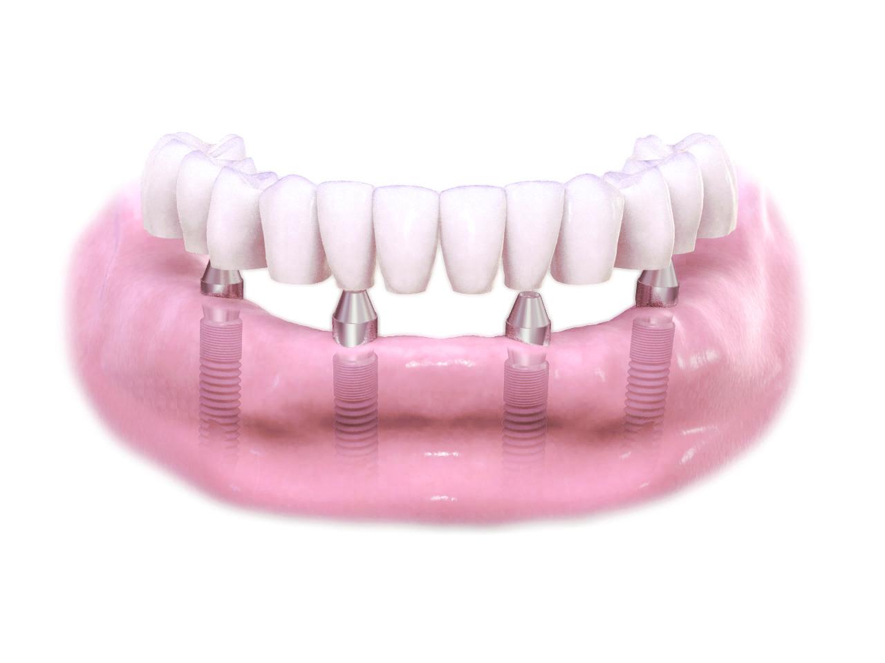 Dental Implants - Ash Kaushesh DDS Master Dentist logo